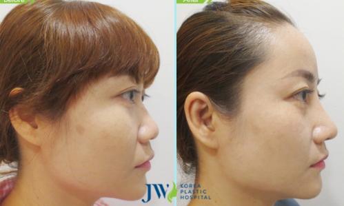 Cách khắc phục biến chứng thường gặp khi nâng mũi