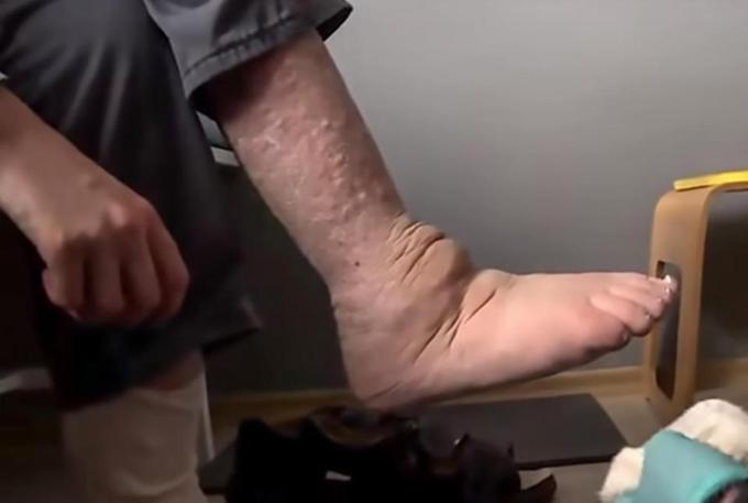 Đôi chân lở loét, sưng phù của Tomasz. Ảnh:Central European News.