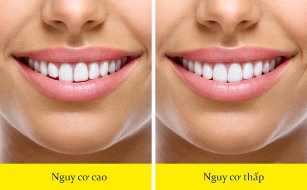 Răng không đều