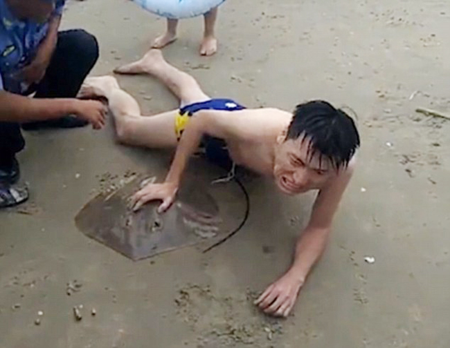 Nam du khách (không được tiết lộ tên) nằm trên bờ biển Tam Á, Hải Nam, Trung Quốc vì bị đuôi cá đuối đâm vào dương vật hôm 1/9. Ảnh: AsiaWire.