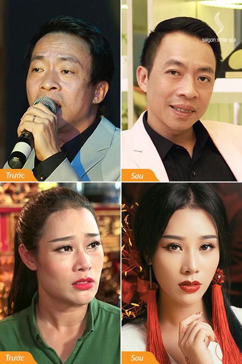 Sao Việt bày cách xóa nhăn, tiêu mỡ mặt, làm đầy rãnh mũi má - ảnh 3