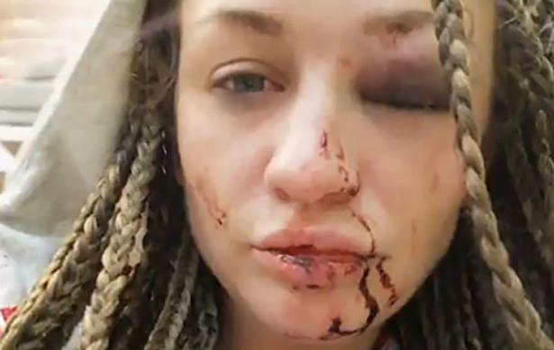 Cô bồ mới Yuliya bầm dập mặt sau khi xô xát với Natalia.
