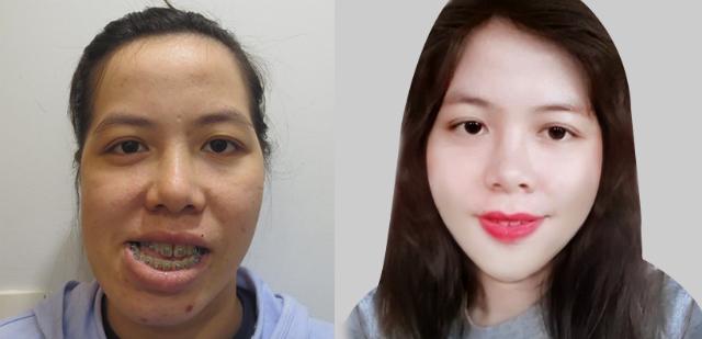 Cô giáo Bình Định 27 năm mặc cảm vì bị chê mặt méo - ảnh 3