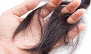 Gợi ý phái đẹp những cách thoát ám ảnh rụng tóc, hói đầu