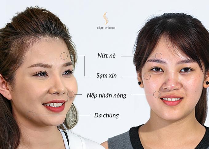 Làn da của chị Thuý Hà (34 tuổi - trái) sau khi xuất hiện nếp nhăn nông. Chị Lê Trang (26 tuổi - phải) tâm sự: Mỗi lần sờ lên mặt, tôi cảm nhận rõ làn da khô, sần sùi, ngứa rát kéo. Khi soi gương cũng thấy lỗ chân lông nở to.