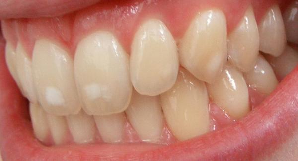 Mảng trắng trên răng Đây là dấu hiệu của bệnh nhiễm fluorosis.