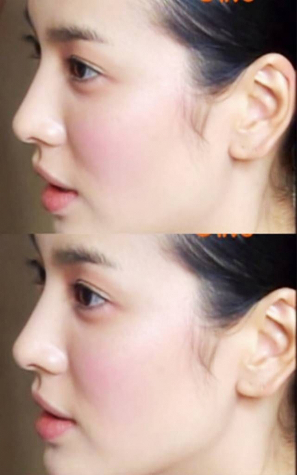 Góc nghiêng thần thánh khoe trọn vẹn khuôn mũi chuẩn mực của nữ diễn viên.