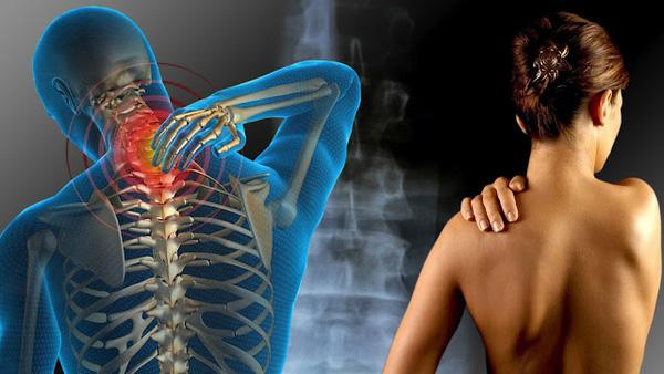 Đau cơ, khớp Đau cổ, vai, gáy được coi là một trong những chứng bệnh văn phòng nghiêm trọng. Thiếu vận động khiến cơ, khớp trở nên yếu, dễ bị loãng xương và dễ tổn thương hơn.