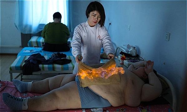 Hỏa liệu pháp được quảng cáo là giúp đốt cháy mỡ thừa vùng bụng hiệu quả.