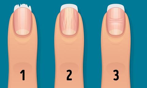 13 dấu hiệu ở móng tay cảnh báo vấn đề sức khỏe nghiêm trọng