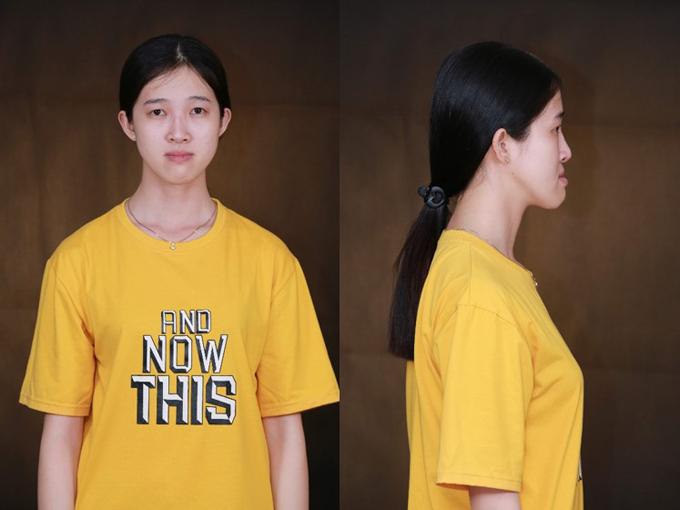 Hoàng Thu Thảo, 9X Bình Dương là một trong những nhân vật từng tham gia chương trình Diện mạo hoàn hảo năm 2017 do thẩm mỹ viện Đông Á tổ chức. Cô nàng cóbiệt danh cô gái mặt lưỡi cày vì đôi mắt mộtmí, hàm dài, hàm bè, hàm trên hơi móm. Nhận thấy vẻ ngoài ảnh hưởng lớn đến cuộc sống, Thảo quyết định tìm đến phẫu thuật thẩm mỹ để cải thiện.