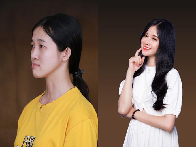 Các bác sĩ tại thẩm mỹ viện Đông Á đã giúp 9x lột xác thành thiếu nữ với gương mặt cân đối, tươi tắn. Chiếc cằm dài, hàm móm biến mất, khuôn mặt thon gọn, đậm sự dịu dàng, nữ tính.