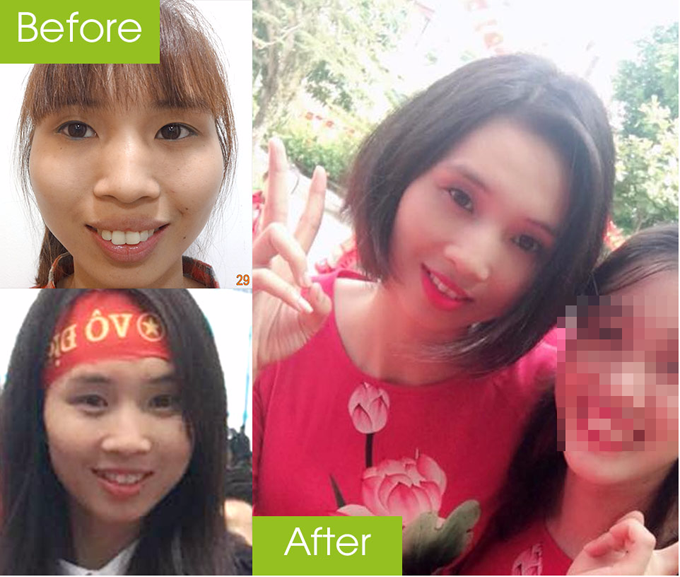 Cô giáo Nguyệt sau phẫu thuật trở nên trẻ trung hơn.