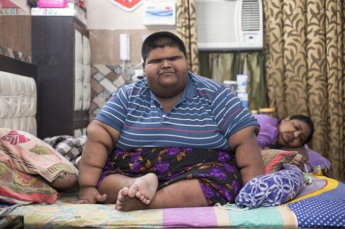Trước khi đến gặp bác sĩ vào tháng 12/2017, Mihir nặng 237 kg và gần như lúc nào cũng ngồi một chỗ. Ảnh: