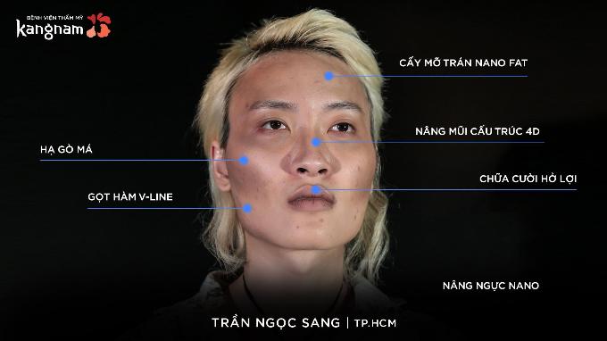 Để có diện mạo nữ tính,Sang đã trải qua một loạt các cuộc đại phẫu.