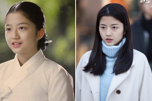 Kim Huyn Soo sinh năm 2000 bắt đầu sự nghiệp với tư cách người mẫu nhí cho một công ty giải trí. Năm 2011, mỹ nhân thử sức với vai trò diễn viên và nhận được nhiều sự chú ý của các đạo diễn.Cô chuyên trị vai nữ chính thời nhỏ vàđược khán giả biết đến qua một số bộ phim như Vì sao đưa anh tới, Mặt nạ cô dâu...