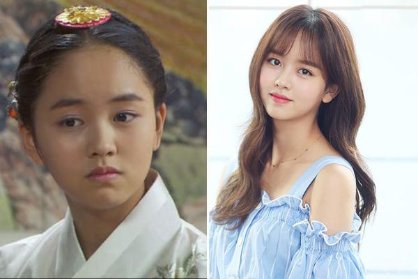 Kim So Huyn ra mắt khán giảlần đầu thông qua bộ phim Happy Woman năm 2007 khi mới 9 tuổi, lập tức được mọi người gọi yêu với cái tên Son Ye Jin nhí. Vì quá đam mê diễn xuất nên khi lên cấp 2, So Huyn đã xin phép gia đình cho phép tự học ở nhà để có thể dành nhiều thời gian theo đuổi nghệ thuật. Sau nhiều nỗ lực, chăm chỉ đóng phim, mỹ nhân nhận được nhiều lời khen từ giới chuyên môn. Năm 2015, với màn thể hiện xuất sắc vai nữ chính trong tác phẩm học đường đình đámSchool 2015, So Huyn chiến thắng giải Nữ diễn viên mới xuất sắc tại Lễ trao giải KBS Drama Awards. Tài năng không giới hạn của cô còn được thể hiện trong nhiều lĩnh vực khác như người mẫu, MC... Năm 2018, sau tác phẩm truyền hình Chuyện tình radio hợp tác cùng tài tử Yoon Doo Joon, So Huyn chưa tham gia thêm dự án nào.