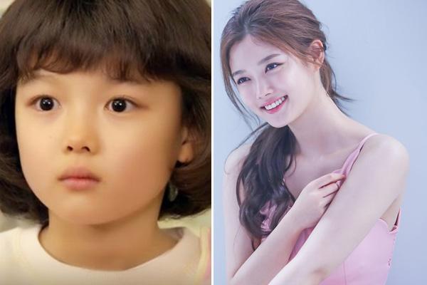 Kim Yoo Jung sinh ngày 22/9/1999 tại Seol, Hàn Quốc. Từ khi 4 tuổi cô đã cùng chị gái tham gia nhiều cuộc thi tài năng dành cho các em bé và đạt được nhiều thành tích. Yoo Jung đến với điện ảnh khi mới 5 tuổi qua tác phẩm về đề tài chiến tranh DMZ. Tuy tuổi đời còn trẻ nhưng mỹ nhân đã tích lũy đượcrất nhiều bộ phim ở cả lĩnh vực truyền hình lẫn điện ảnh. Lên 10 tuổi, cô nhận được nhiều giải thưởng và đề cử tại những lễ trao giải lớn như SBS Drama Awards, Grand Bell Awards... Không chỉ tích cực hoạt động ở lĩnh vực phim ảnh, Kim Yoo Jung còn nhận lời làm người mẫu, đại sứ thương hiệu cho nhiều nhãn hàng thời trang và chiến dịch cộng đồng. Hiện tại, cô là một trong những nữ diễn viên trẻ tiềm năng và sở hữu lượng fan đông đảo không chỉ ở Hàn Quốc.