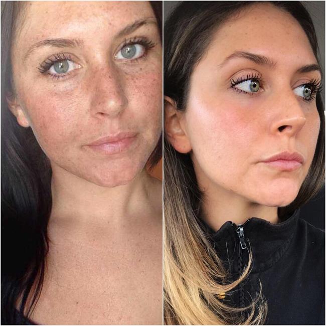 NeverMeant125 chia sẻ hình ảnh cho thấy sự khác biệt của làn da sau 4 năm kiên trì chăm sóc. Cô khẳng địnhhình ảnh bên phải là mặt mộc, chỉ sử dụng mascara.