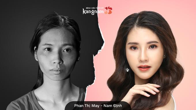 Sau lột xác, 9x Nam Định được ví như hoa hậu chuyển giới Thái Lan