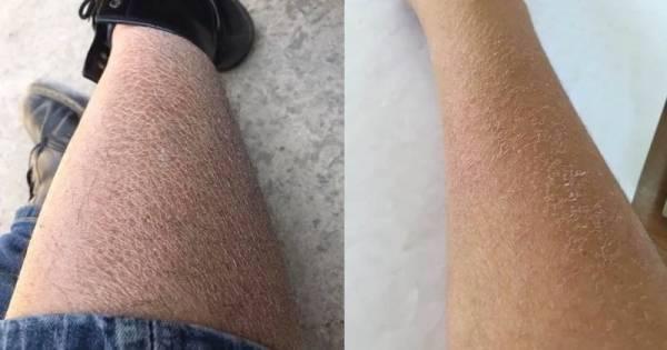 Vào mùa đông, thời tiết thường hanh và khô khiến da bị mất nước dẫn đến tình trạng da bị khô, nhất là ở mặt và tay thường có hiện tượng khô, nứt nẻ.