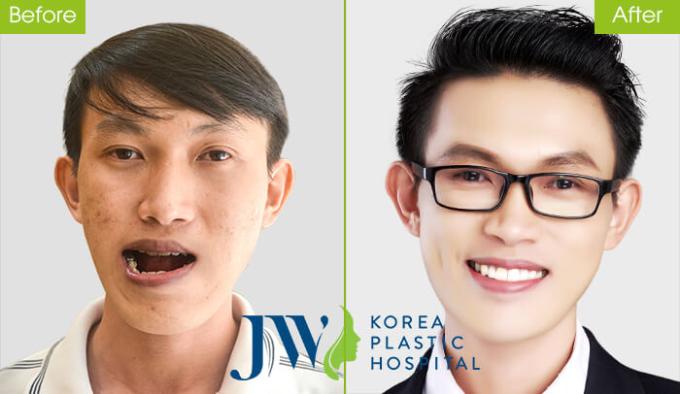 JW đứng đầu bệnh viện thẩm mỹ chất lượng trong năm 2018. - 3