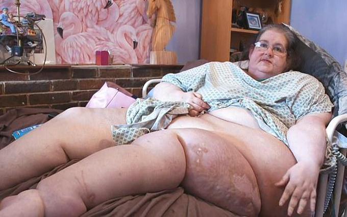 Claire trước ca phẫu thuật cắt bỏ dạ dày. Ảnh: Channel 4.
