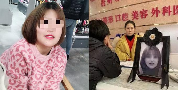 Xia đã nỗ lực làm thêm nhiều việc bán thời gian để tiết kiệm tiền cho ca nâng mũi. Ảnh: Shanghaiist.