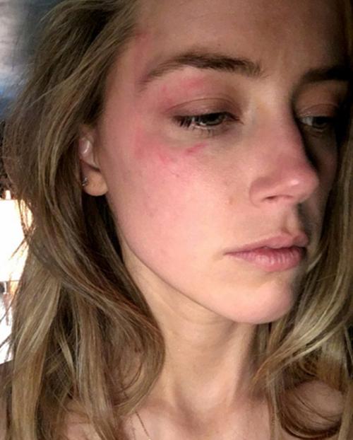 Amber Heard ra tòa vào tháng 5/2016, tố cáo Johnny đã ném điện thoại vào mặt cô.