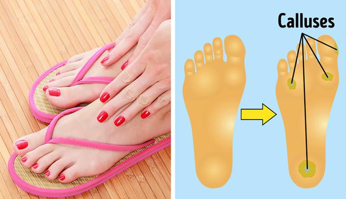 Dép xỏ ngónSự tiện lợi, gọn nhẹ của dép xỏ ngón khiến chúng trở thành món phụ kiện quen thuộc đối với cả phái đẹp lẫn cánh mày râu, đặc biệt trong mùa hè hay khi đi biển. Tuy nhiên, quai dép chà xát mạnh giữa các ngón chân gây tổn thương da. Bên cạnh đó, khi mang kiểu dép này, bàn chân không được hỗ trợ đúng cách dẫn đến đau nhức, cơ thể nhanh mệt mỏi.
