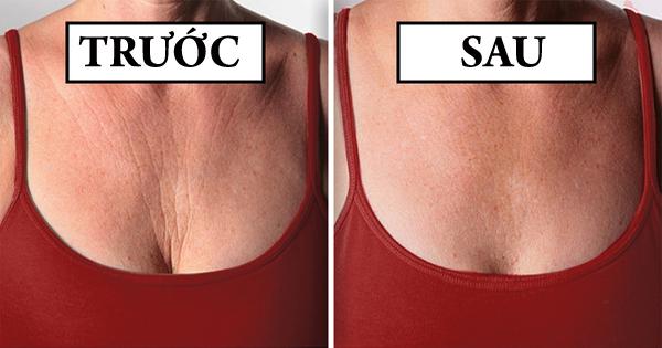 Mặc áo ngực đúng kích cỡ Áo ngực quá chật sẽ gò ép vòng một, khiến dễ hình thành nếp nhăn. Áp ngực quá rộng lại có thể khiến ngực chảy xệ, dễ lão hóa. Mặc áo ngực đúng kích cỡ là cách tốt nhất để bảo vệ sức khỏe vòng một.