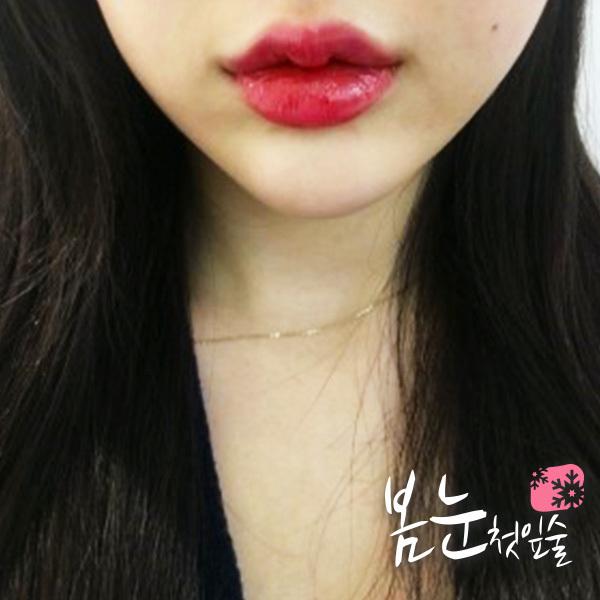 Thiếu nữ Hàn đổ xô đi tạo hình môi chữ M giống chị đẹp Son Ye Jin - 7