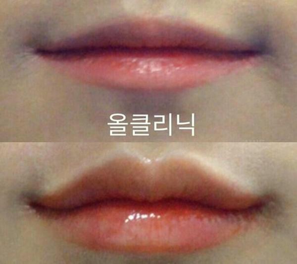 Thiếu nữ Hàn đổ xô đi tạo hình môi chữ M giống chị đẹp Son Ye Jin - 3