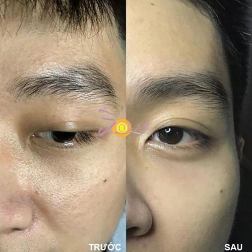 Làn da của khách hàng trước và sau khi thu hẹp lỗ chân lông tại Solar Spa.