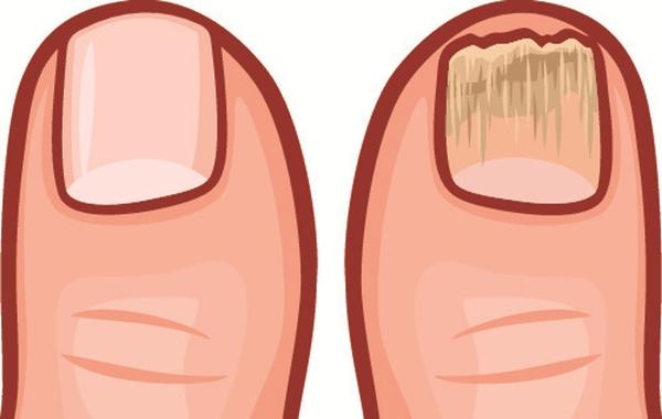 10 dấu hiệu tố cáo cơ thể bạn đang tích tụ rất nhiều độc tố - 8