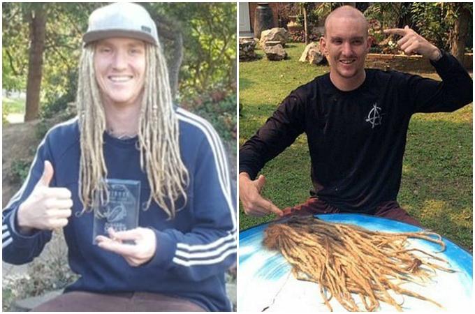 Chris Dodd trước (hình trái) và sau khi ngồi tù 12 ngày - Ảnh DoddFamily.