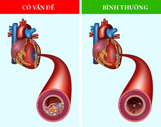 Ngăn ngừa bệnh tim mạch chà là làm giảm nồng độ triglyceride và giảm stress oxy hóa, cả hai đều là yếu tố nguy cơ của bệnh tim và xơ vữa động mạch.
