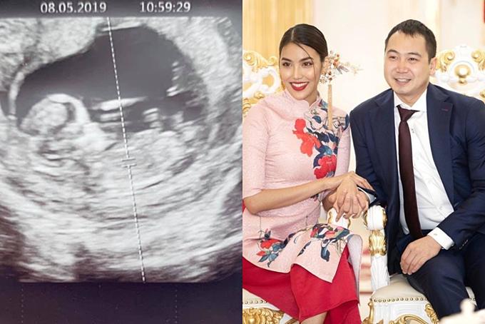 Hôm 11/5, sau bảy tháng kết hôn, Lan Khuê thông báo cô đang mang thai con đầu lòng. Ông xã Tuấn John còn khoe ảnhsiêu âmlên trang cá nhân. Hiện sức khỏe Lan Khuê ổn định, không ốm nghén nhiều và hai vợ chồng hào hứng chuẩn bị cho sự ra đời của thành viên mới.