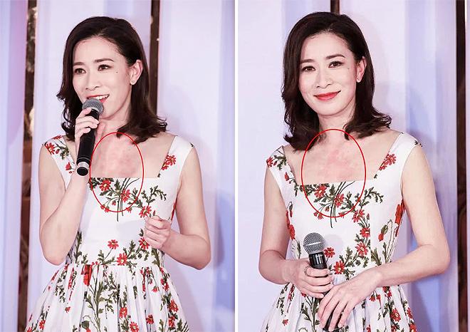 Xa Thi Mạn tham gia một sự kiện ở Thượng Hải hôm 23/5 và gây chú ý vì cổ mẩn đỏ như dị ứng. Da Xa Thi Mạn vốn trắng, vì thế những mẩn đỏ càng rõ rệt. Nữ diễn viên Diên Hy Công Lược tiết lộ cô vừa trải qua một giai đoạn vất vả vì ghi hình show thực tế trong thời tiết nắng nóng, khiến da bị ảnh hưởng.