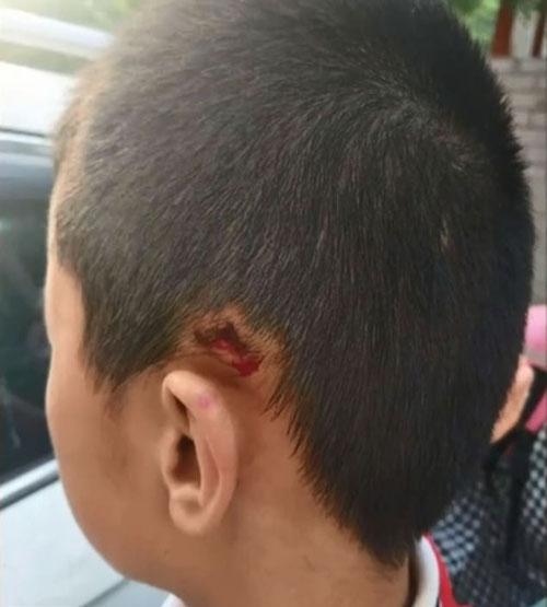 Vết cắt bên tai trái cậu bé sau khi bi thầy bạo hành.