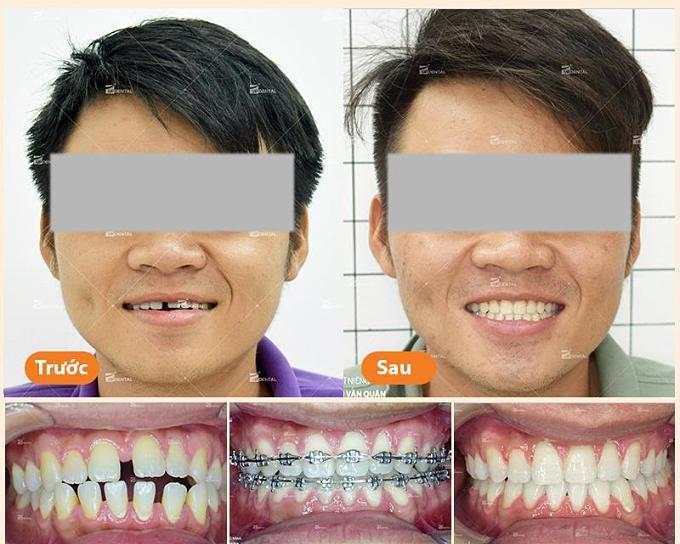 Khắc phục răng thưa để nụ cười thêm tươi tắn - 1