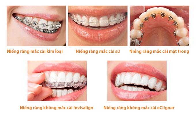Các phương pháp niềng răng tại Up Dental.