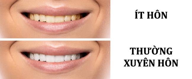 Nước bọt tiết ra trong quá trình hôn góp phần làm sạch khoang miệng.