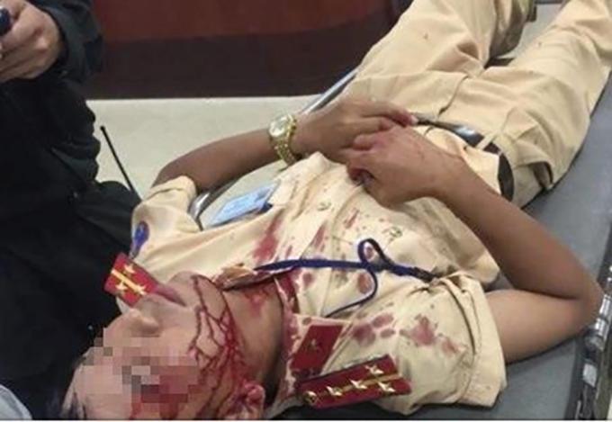 Đại uý Sơn bị tấn công khiến bị thương vùng đầu.