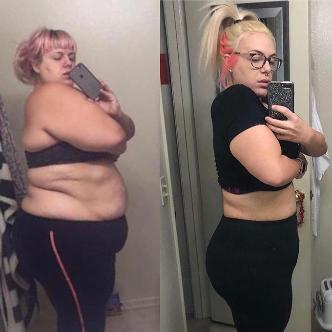 Sarah hiện phải đối mặt với vấn đề rạn da, chảy xệ sau giảm cân.