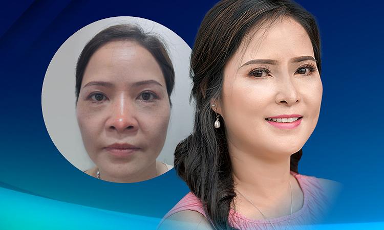 Nữ Việt kiều thoát mũi biến dạng sau 10 năm