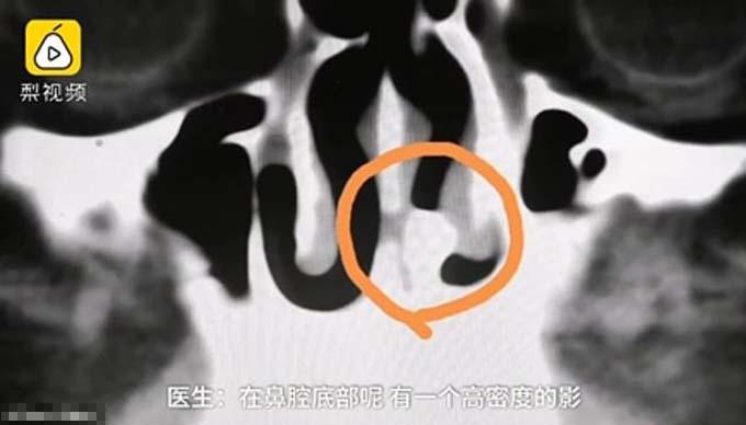 Chiếc răng phát triển trong khoang mũi của Zhang. Ảnh: Helongjiang TV.