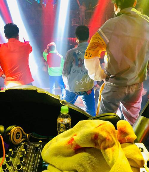 Bị thương chảy máu nhưng Mr Đàm vẫn gồng mình hát tiếp cho hết tiết mục tối 8/1. Anh khẳng địnhsẽ không bao giờquay lại quán bar nàydiễn.
