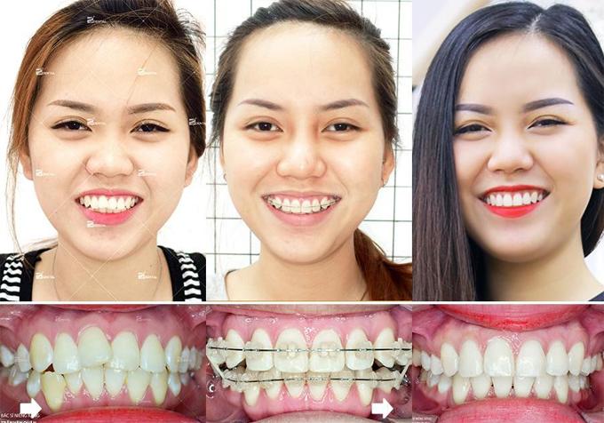 Hàm răng khấp khiểng của Phương Linh đều, đẹp hơn sau khi niềng răng mắc cài sứ.