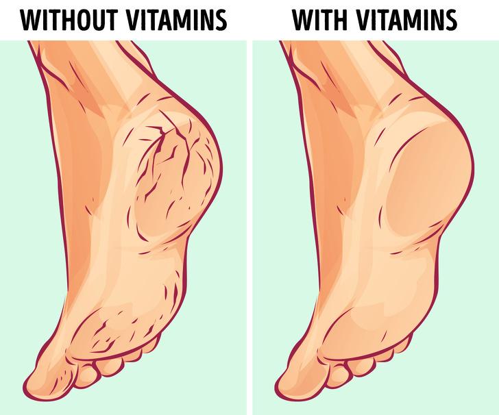 6 lý do khiến gót chân bị khô nứt